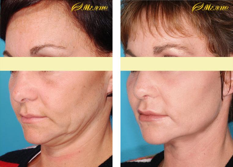 лазерное омоложение лица отзывы фото может меняться зависимости